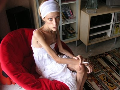 Isabella Caro dies at 28 after struggle with anorexia