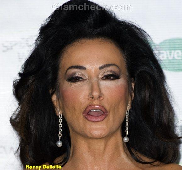 Nancy Dellolio Funny Celebrity Photos 2011
