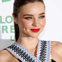 Miranda Kerr still recovering from back injury
