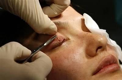 Blepharoplasty / eyelid surgery  (2)