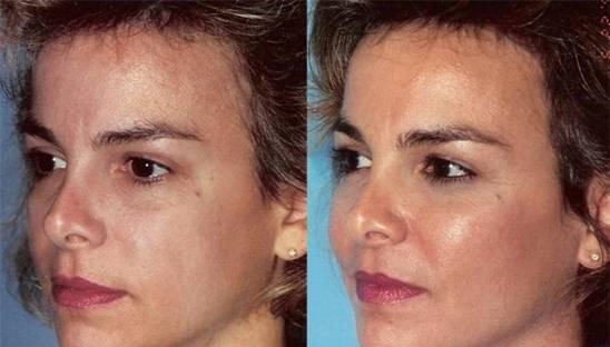 Cheek augmentation / cheek implant