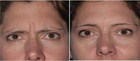Eyebrow lift before after
