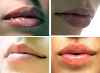 Lip augmentation / lip enhancement