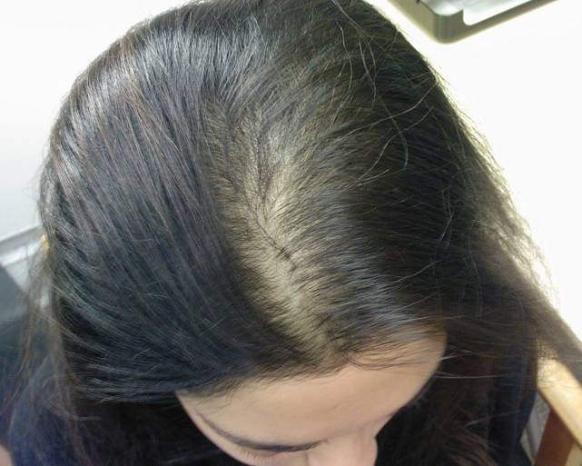 Image result for Women also experience female-pattern hair loss that is known as Androgenetic Alopecia