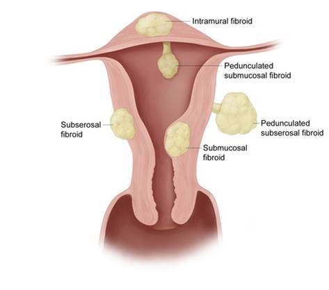Period Blood Clots Pictures Can cause blood clotting.