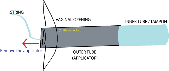 Inserting an applicator tampon - 4