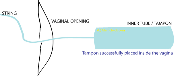 Inserting an applicator tampon - 5
