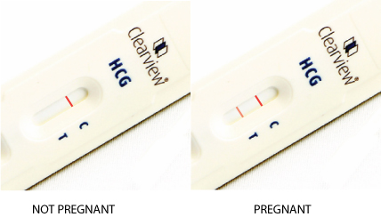 Pregnancy urine smell and color