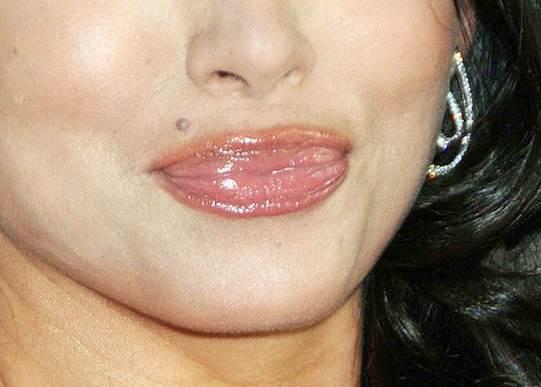 Stephanie Jacobsen lip agumentation gone wrong
