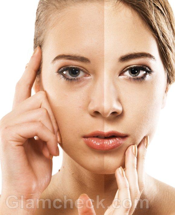 get fair skin remedies