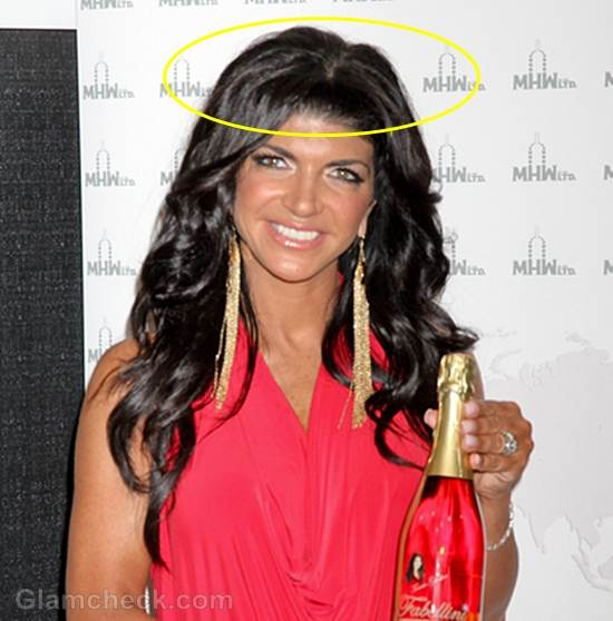 Teresa Giudice and her Faux Scalp