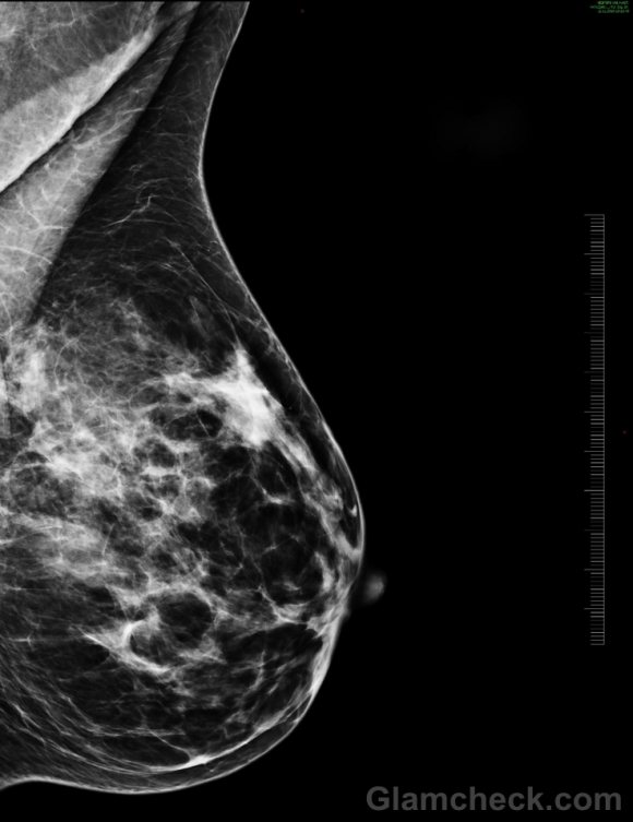 Breast density associated with breast cancer