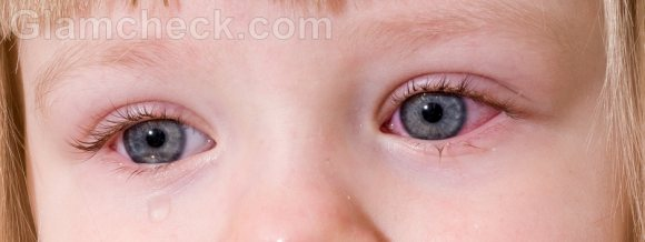 Eye infection symptoms