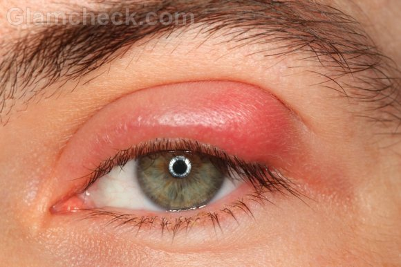 Stye eye infection