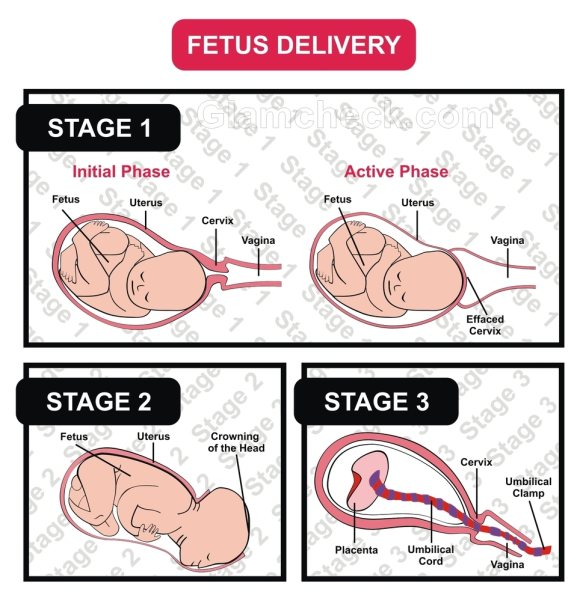 Labor Delivery stages
