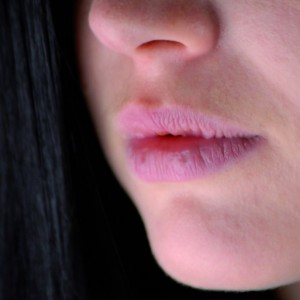 Cracked Lips Causes Symptoms and Treatment
