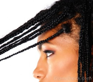 Traction Alopecia: Causes & Treatment