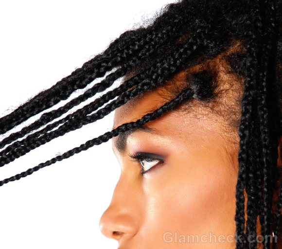 Traction Alopecia Causes Treatment