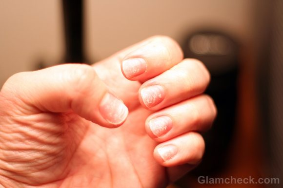 Cracked Nails : Causes, Symptoms & Treatment