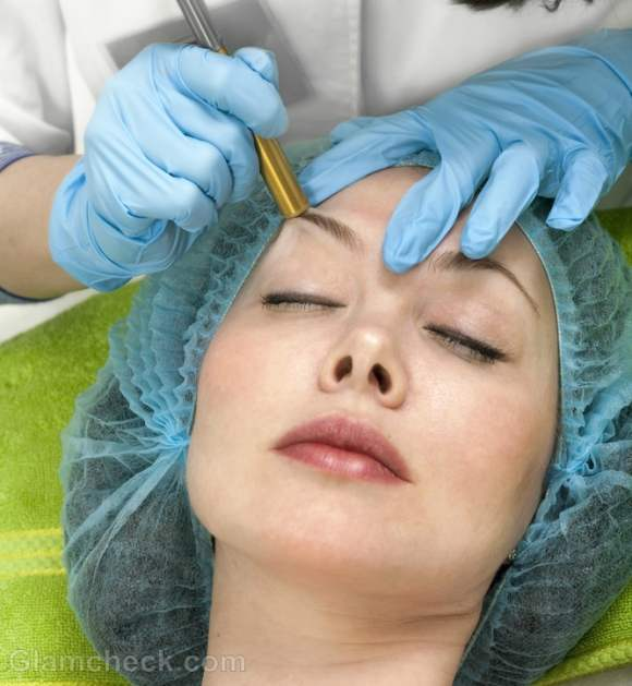 Scar therapy Microdermabrasion minimize scars