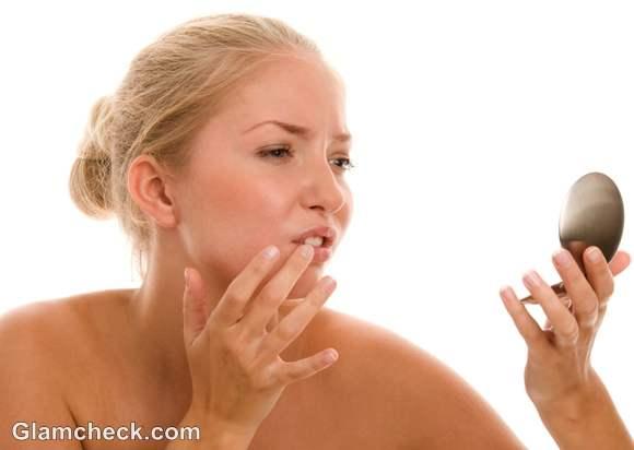 Cold Sore symptoms causes treatment