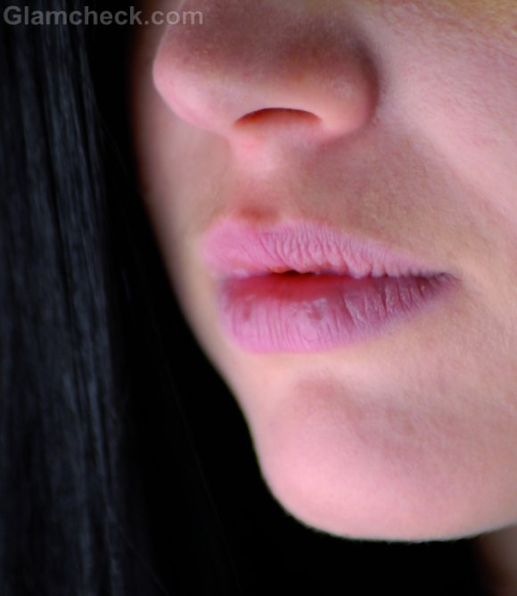 Home Remedies to Deal with Chapped Lips During Summers